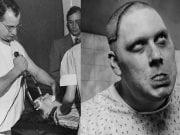 Fotografie pacientov z najznámejšej psychiatrickej liečebne 19. storočia. Treba vedieť